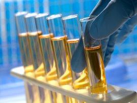 Qualidades desejáveis dos óleos lubrificantes